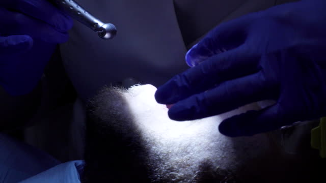 Dentist drilling tooth in dental clinic video