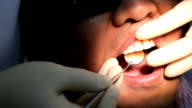Dentist examines oral cavity and patient's teeth using dental mirror closeup video