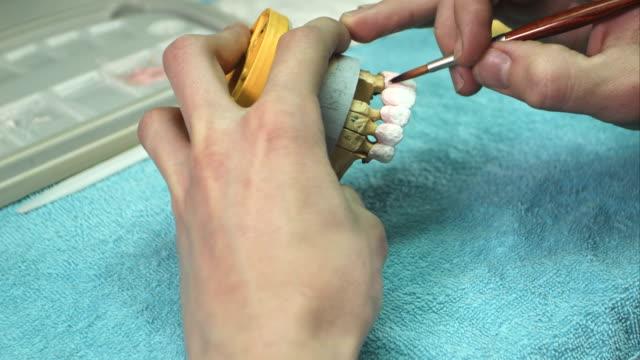 Dentist prepare model of the human jaw video