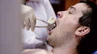 Dentist pull out tooth at dental clinic. video