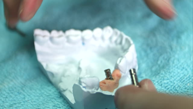 Dentist shows model of dental prosthesis with implant video