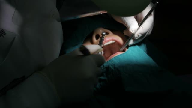 Dentist treats teeth woman video