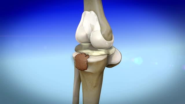 disease of  human knee video