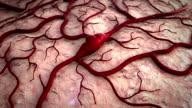 disease, stroke video