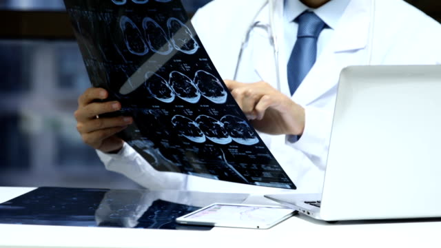 Doctor checking x-ray photo of patients video