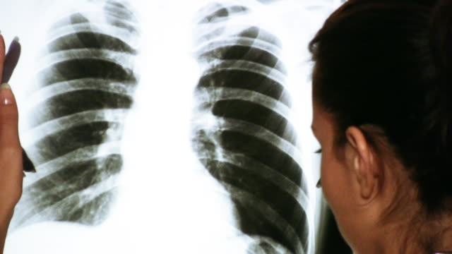 HD: Doctor Examining an x-ray image video