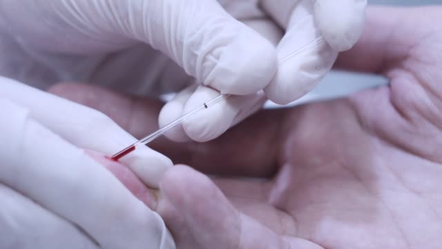 Doctor hand taking blood sample for medical test. Finger blood test video