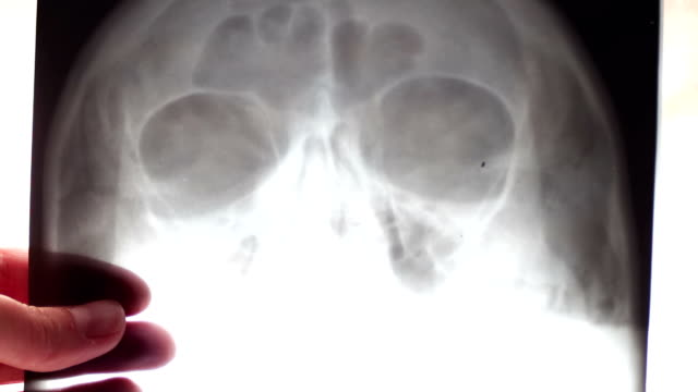 Doctor looks at the X-ray of the human skull and maxillary sinuses video
