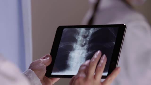 Doctor looks at x-rays with touch screen tablet video