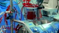 Doctor near Cardiopulmonary bypass machine video