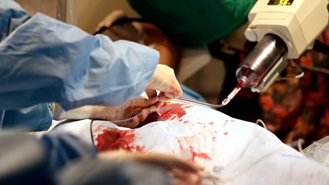 Doctor prepare equipment for percutaneous  tranluminal coronary angioplasty video