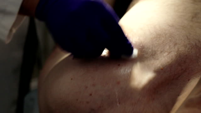Doctor preparing patient for surgery of mole removal. video