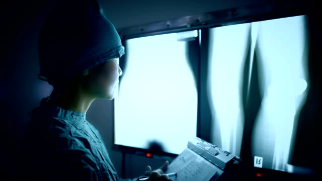 Doctor reading X-Rays pointing with a pencil video