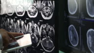 Doctor using tablet computer looking at x-ray scan of human brain, Healthcare And Medicine Concept video