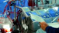 Doctor writes down Cardiopulmonary bypass machine data video