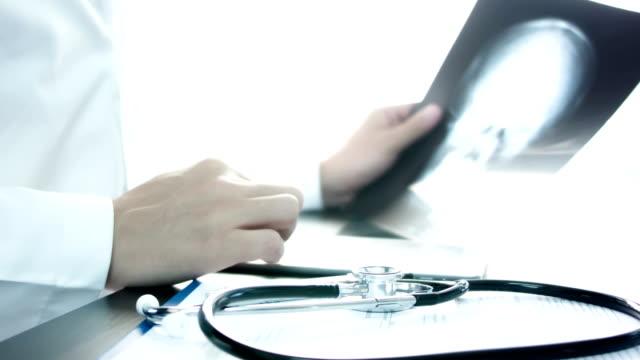 Doctors examining skull x-ray video
