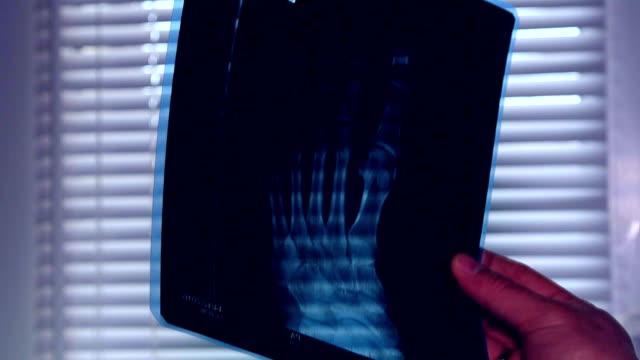 Doctors Study leg  X-Ray video
