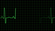 EKG electrocardiogram pulse trace heart monitor video