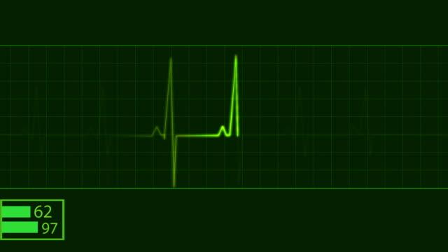 EKG electrocardiogram pulse trace heart monitor video