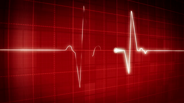 EKG electrocardiogram pulse video