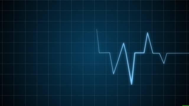 EKG / Electrocardiogram /Pulse Waveform with sound video