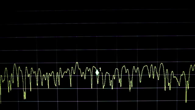electronic wave signal video