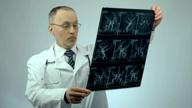 Experienced cardiologist checking CT scan of blood vessels, looking surprised video