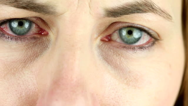 Extreme Close Up Of Red Irritated Eyes video