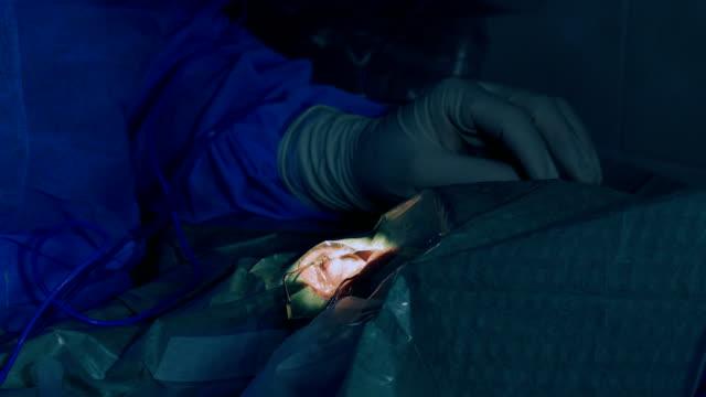 Eye microsurgery. Medical operation video