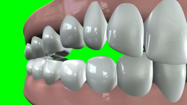 False Teeth Closeup Pan video