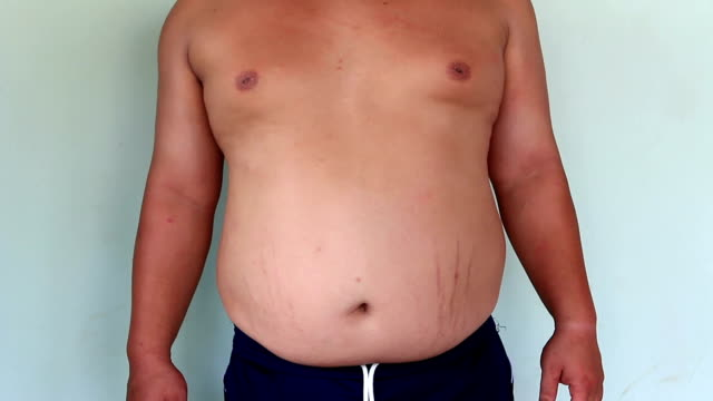 Fat Belly and Belly Button video