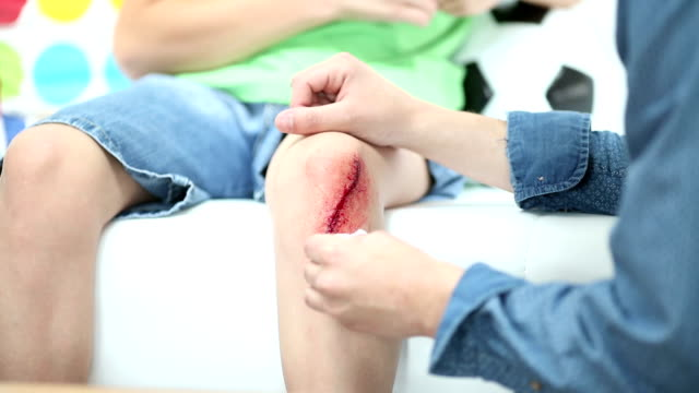 HD: Father Cleaning sons scraped knee. video