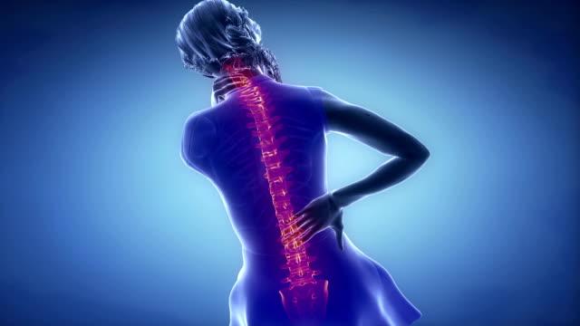 Female backbone hurt injury -  spine concept video