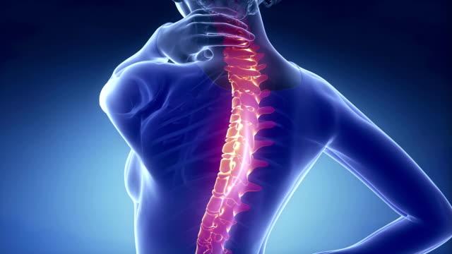 Female backbone injury pain - spine hurt concept video