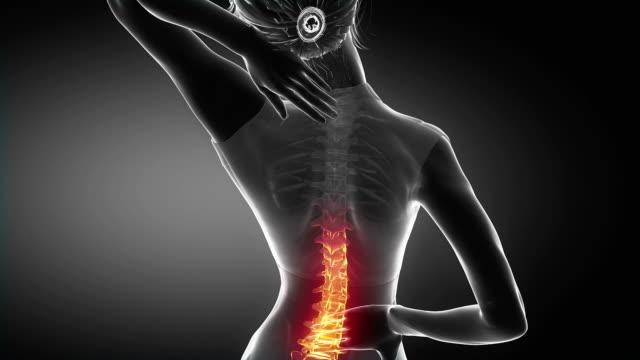 Female backbone pain - spine hurt concept video