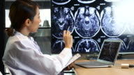 Female Doctor Analysis MRI brain scan on Display video