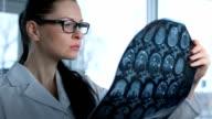 Female doctor viewing mri brain scan video