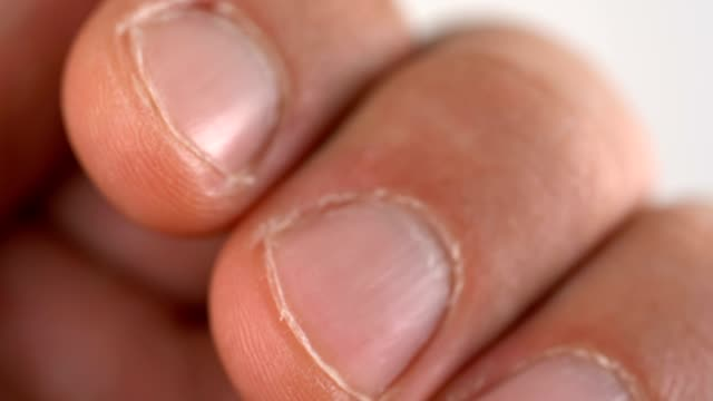 Fingernails on the fingers of a man video