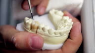 Finishing a molar prosthesis video