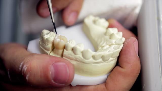Finishing a molar prosthesis video