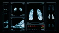 Foot MRI Scan. Top, front and lateral view. Blue. video