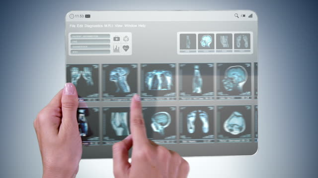 Futuristic medical tablet with MRI videos. video