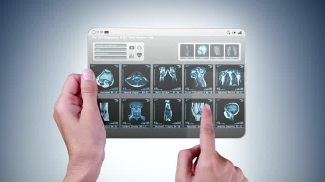 Futuristic mini-tablet with MRI videos. video