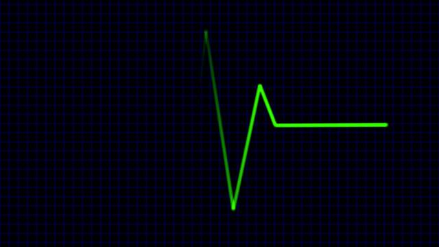 Green cardiogram - digital animation video