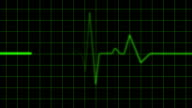 Green Heart Monitor Screen with Alpha video