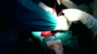 HD:Inguinal Hernia Surgery (24) video