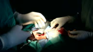 HD:Inguinal Hernia Surgery (31) video