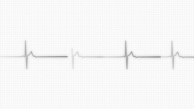 Heart Line   Pulse Trace video
