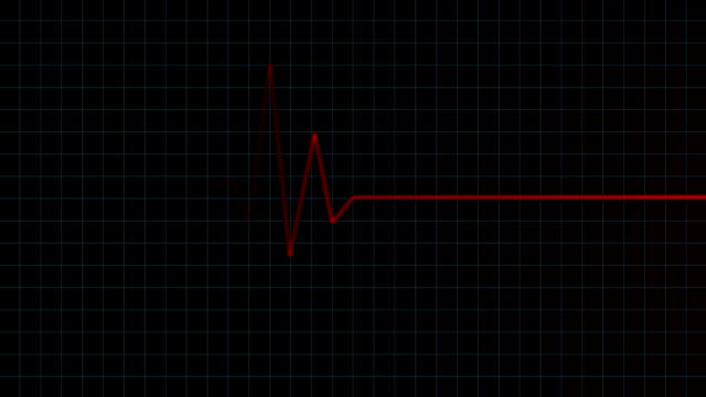 Heart Monitor Animation video