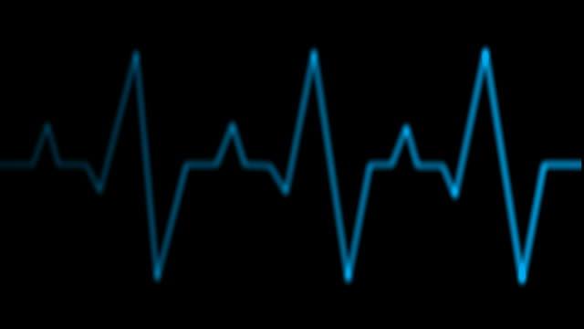 EKG heart monitor video